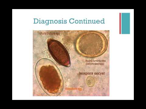 how to get rid of coccidia in humans