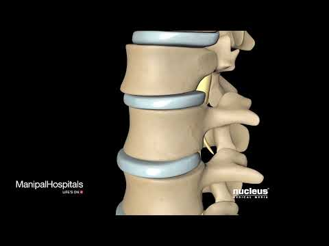 Get Facts About Spinal Fusion Surgery - Manipal Hospitals