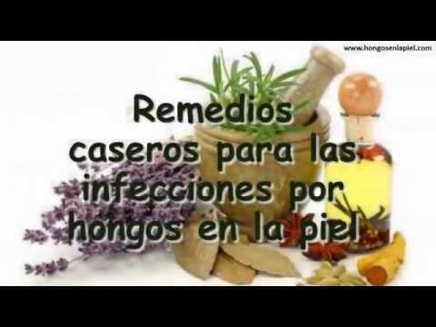 remedios caseros para hongos en la piel del bebe