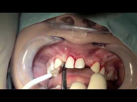 Bali Dental Clinic, Dental Implant Treatment