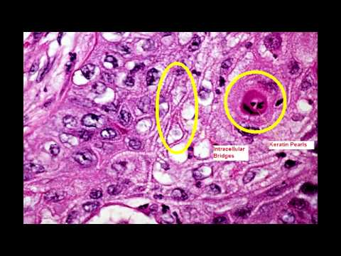 Squamous Cell Carcinoma Of The Lung  Youtube. Alcohol Abuse Signs. Point Signs Of Stroke. Seven Deadly Sin Signs Of Stroke. Romance Signs Of Stroke. Behavior Checklist Signs. Mucinex Signs. Movie Tim Burton Signs. Silhouette Signs