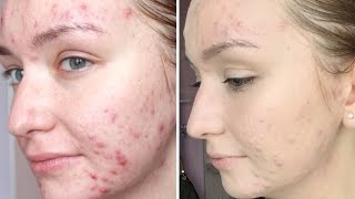 Смотреть видео что делает макияж с проблемным лицом