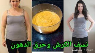 الوصفة المعجزة لسد الشهية ونسف دهون الكرش /اخسر10كيلو فى الشهر بهذه الوصفة