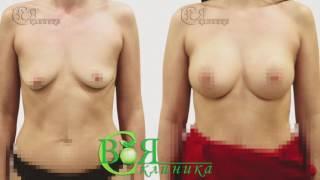 Своя Клиника / Пластическая хирургия Спб / УВЕЛИЧЕНИЕ груди Спб(, 2016-12-26T15:05:25.000Z)