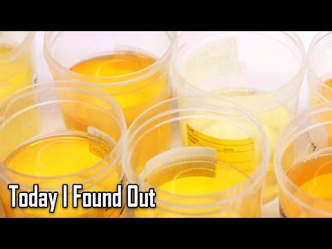 Why Do Vitamins Make Urine Bright Yellow