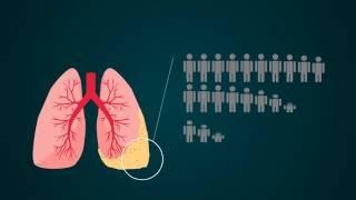 ¿Asbesto en casa? Sepa detectarlo y protéjase | Abogados de Asbestos y Mesotelioma | abogados.com