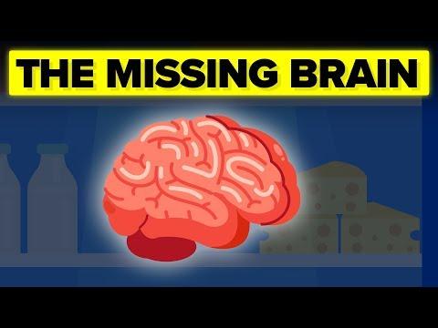 The Insane Mystery Surrounding JFK's Missing Brain