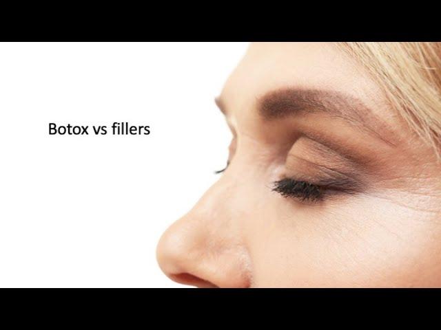 Botox® vs fillers.