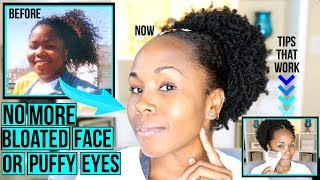 How to Get Rid of Bloated Face, Double Chin, Puffy Eyes & Face Fat FAST & NATURALLY