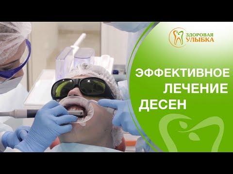 Лечение десен аппаратом Vector. 🌞 Безболезненное лечение десен аппаратом Vector. 12+