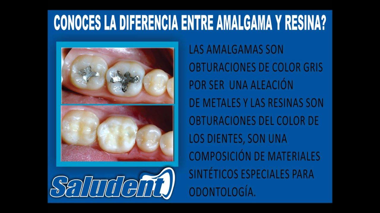 Diferencia entre amalgama y resina youtube for Diferencia entre yeso y escayola