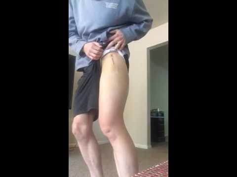 One Week Post Op- Total Hip Replacement