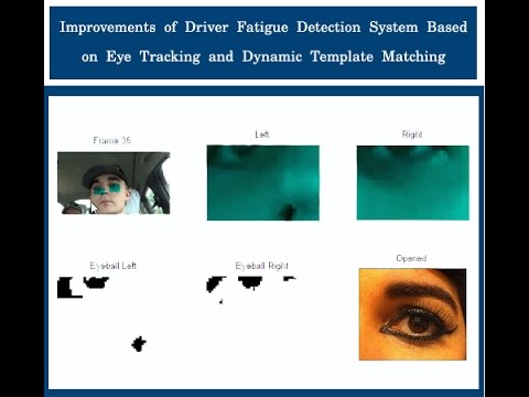 Eye Lid Detection And Alert System Drowsiness Detection