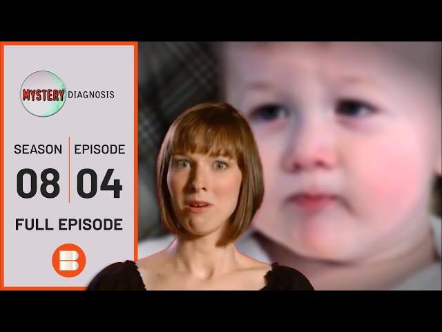 The Boy with the Strange Stare: Paroxysmal Tonic Upgaze (PTU) | Medical Documentary | Reel Truth