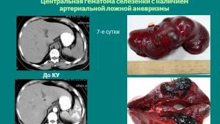 КТ диагностика травмы органов брюшной полости(, 2015-04-26T18:45:37.000Z)