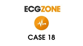 ECG 18 - Sudden Palpitations in Healthy Male