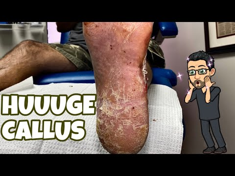 Download EXTREMELLY SATYSFYING CALLUS SCRAPING