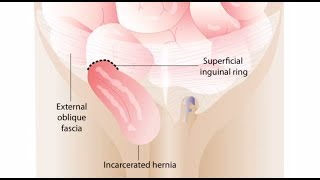Right Inguinal Hernia Repair (Male Patient)