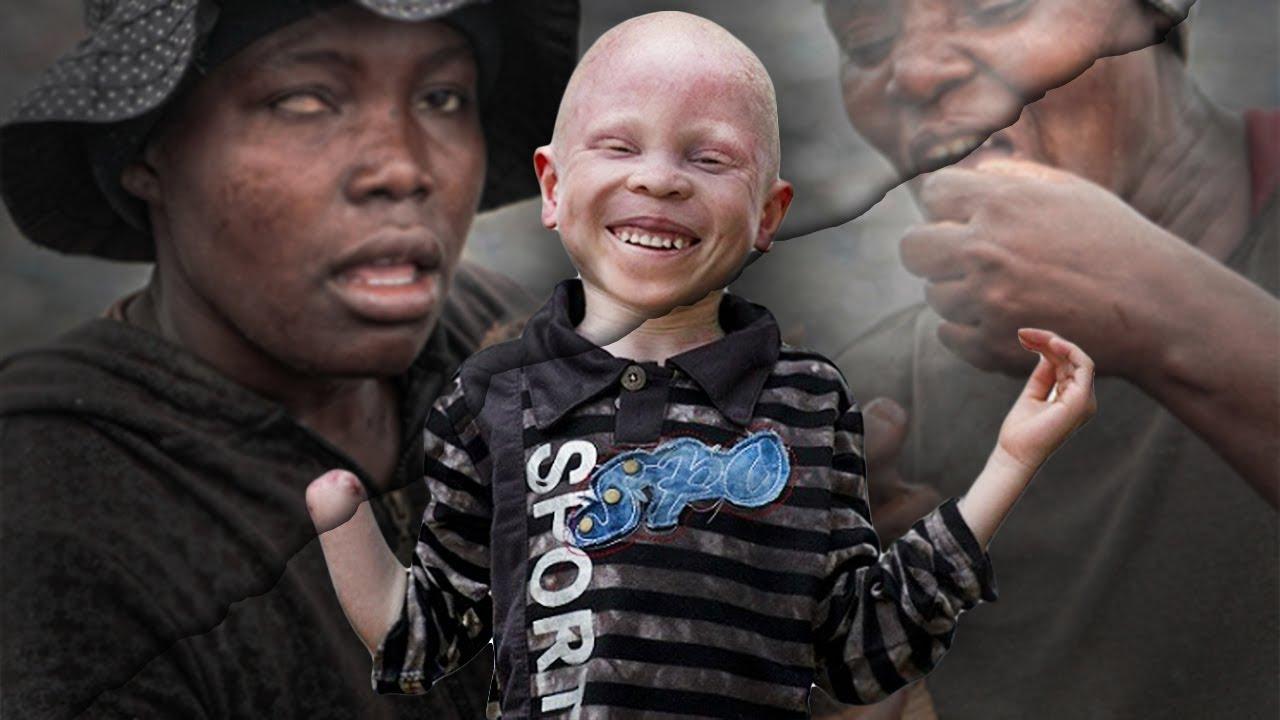 Сезон охоты на альбиносов опять открыт. альбиносов, Африке, которые, Западной, Сиссоко, вместе, выборами, Дженебы, когда, использовать, части, которым, отрубают, похитили, президентскими, меланина, убийц, многих, также, девочки