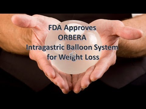 ORBERA gastric balloon System for Weight Loss