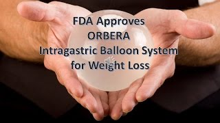 Orbera Gastric Balloon System Weight Loss