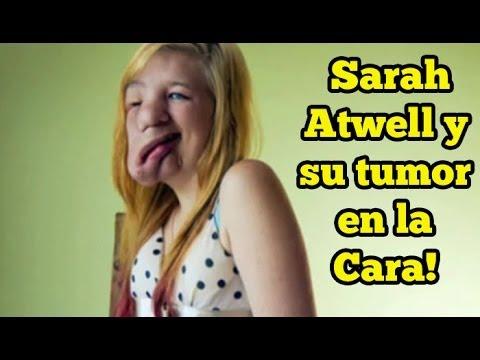 8 Fotos de Sarah Atwell y su tumor en la Cara!