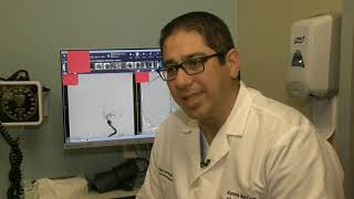 Stroke Can be Caused by Afib | Neuroscience | Aurora BayCare