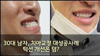 치아교정 양악교정 성공사례 real후기입니다. 주걱턱 …