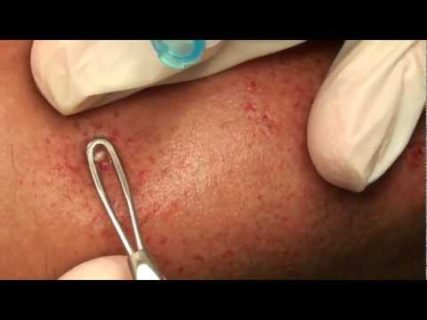 Fast and furious pimple pop! - YouTube