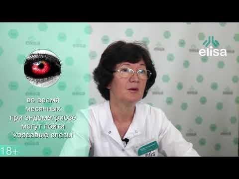 Диагностика эндометриоза. Гинеколог о факторах риска и симптомах заболевания.