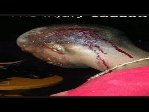 Belize GSU police brutalize Belizean Artist at music week