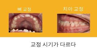 아이들 교정 언제 해야할까?-치아교정시기와 턱뼈 교정 …