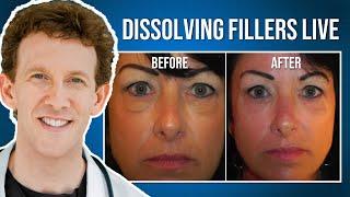 Dr  Scheiner Dissolving Under Eye Fillers