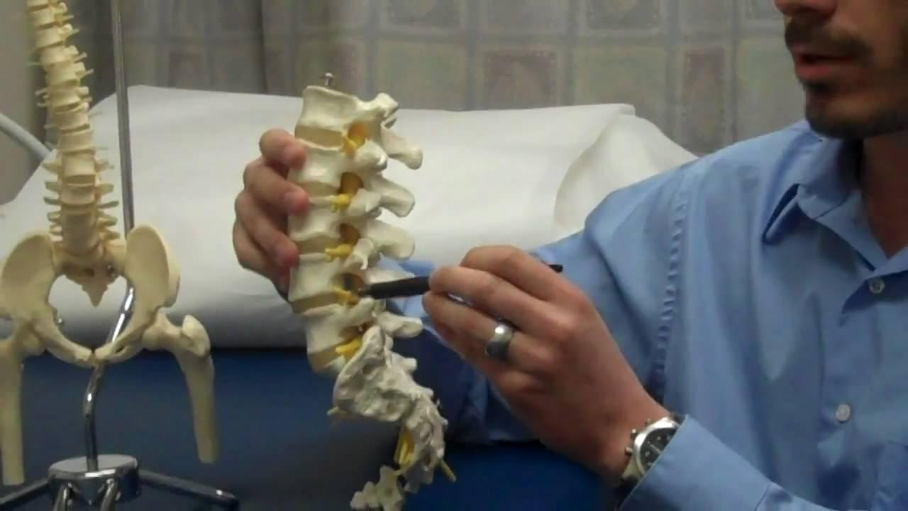 Lumbar Facet Syndrome | Back Pain | Dr. Jeff Kleiner ...