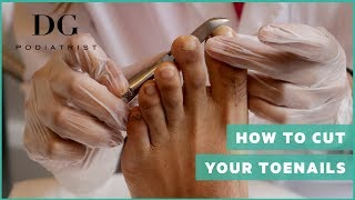 How to cut your toenails: All shapes!