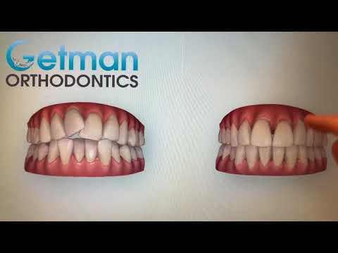 Smile Outcome Simulator At Getman Orthodontics - Free Invisalign Smile Preview In Germantown TN