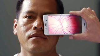 Test & Exam your Eyes with Android Phone (Eye Test-Eye Exam)