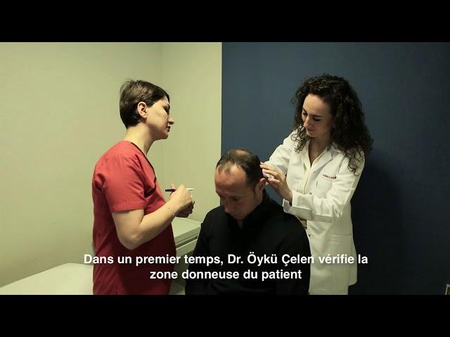 Greffe de cheveux Turquie – Consultation et Préparation - Dr. Öykü Çelen – Skin Health Turkey