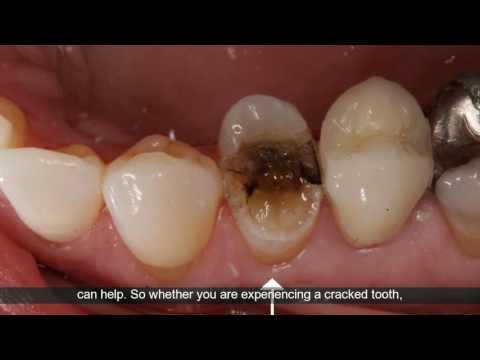 Emergency Dentist Houston, Texas | Houston, TX Emergency Dental