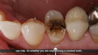 Emergency Dentist Houston Texas