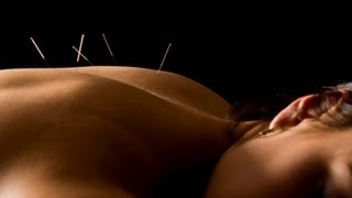 *Acupuncture Los Angeles-LA* (Back Pain Fertility Weight Loss Depression Allergies)
