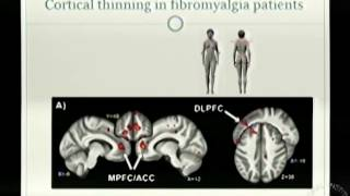 brain changes in chronic pain patients
