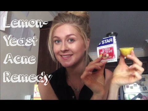hqdefault - Yeast And Lemon Juice For Acne