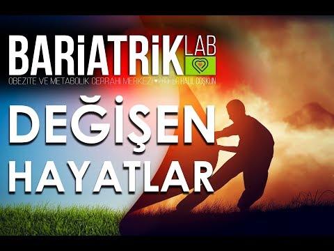 Tüp Mide Ameliyatı Sonrası Başarı Hikayesi / Show TV / Prof. Dr. Halil Coşkun