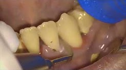 Teeth Deep Cleaning and Scaling