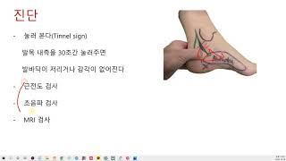 발저림, 발바닥 통증을 호소하는 환자가 많습니다 발저림…