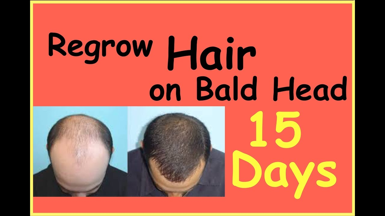 How To Regrow Hair On Bald Head  Hairfall And Dandruff Treatment At Home