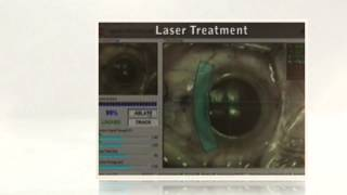 Wavefront Lasik Surgery Miami Beach, FL 33139  (954) 458-2112 - Call Now!  Braverman Eye Center
