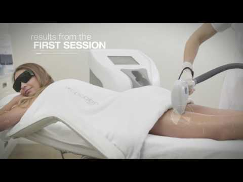 feel-the-most-efficient-hair-removal-in-the-market-with-primelase-hr-|-cocoon-medical