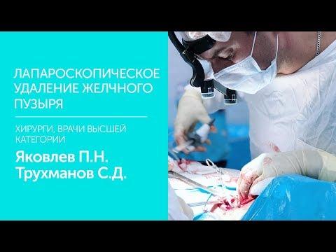 Лапароскопическая холицистэктомия. Врач высшей категории, ведущий хирург Яковлев П Н